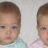 Prozvane najljepšim blizankinjama na SVIJETU: saznajte kako one izgledaju poslije 7 godina!